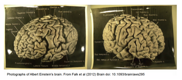 two pictures of a brain